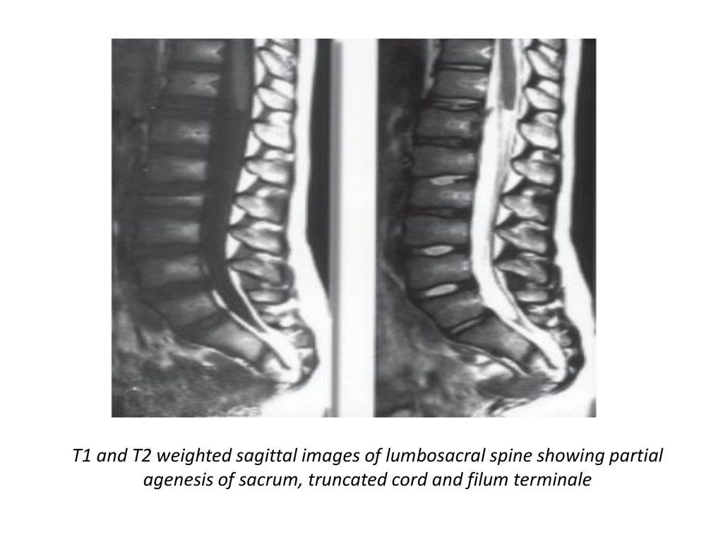 Bladder Autoaugmentation and Mitrofanoff Appendicovesicostomy on a ...