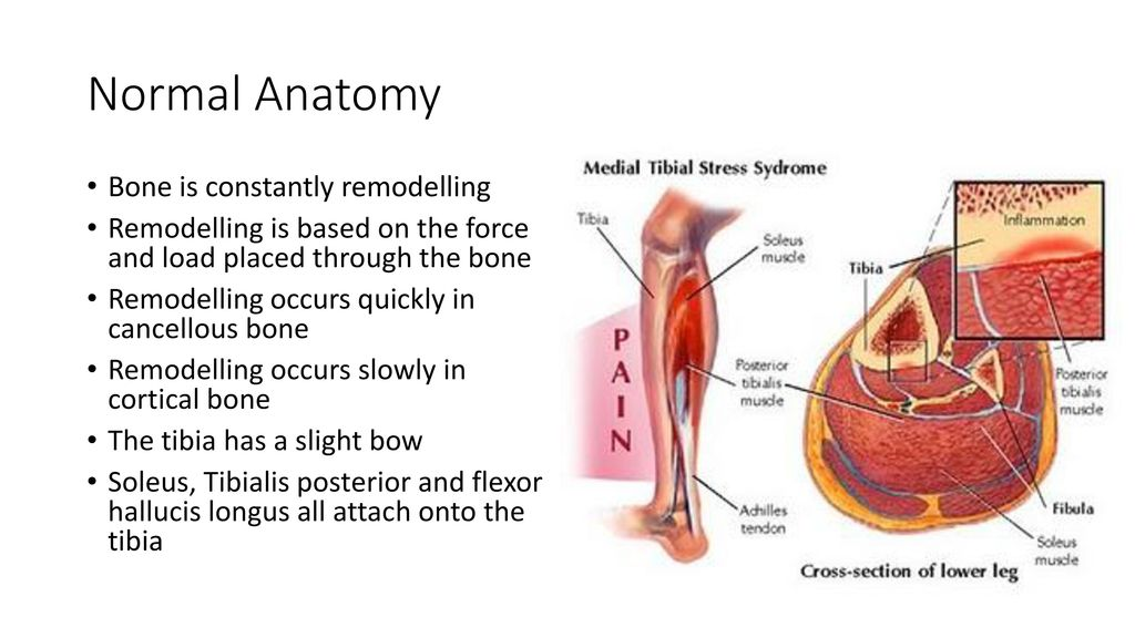Medial Tibial Stress Syndrome (Shin Splints) - ppt download