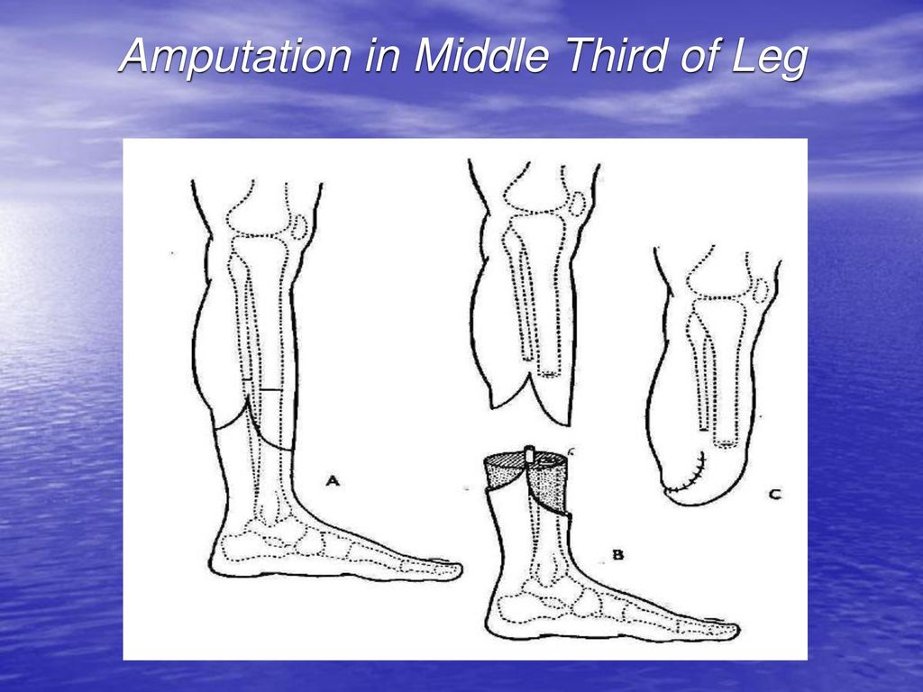 Indications to Amputations - ppt download