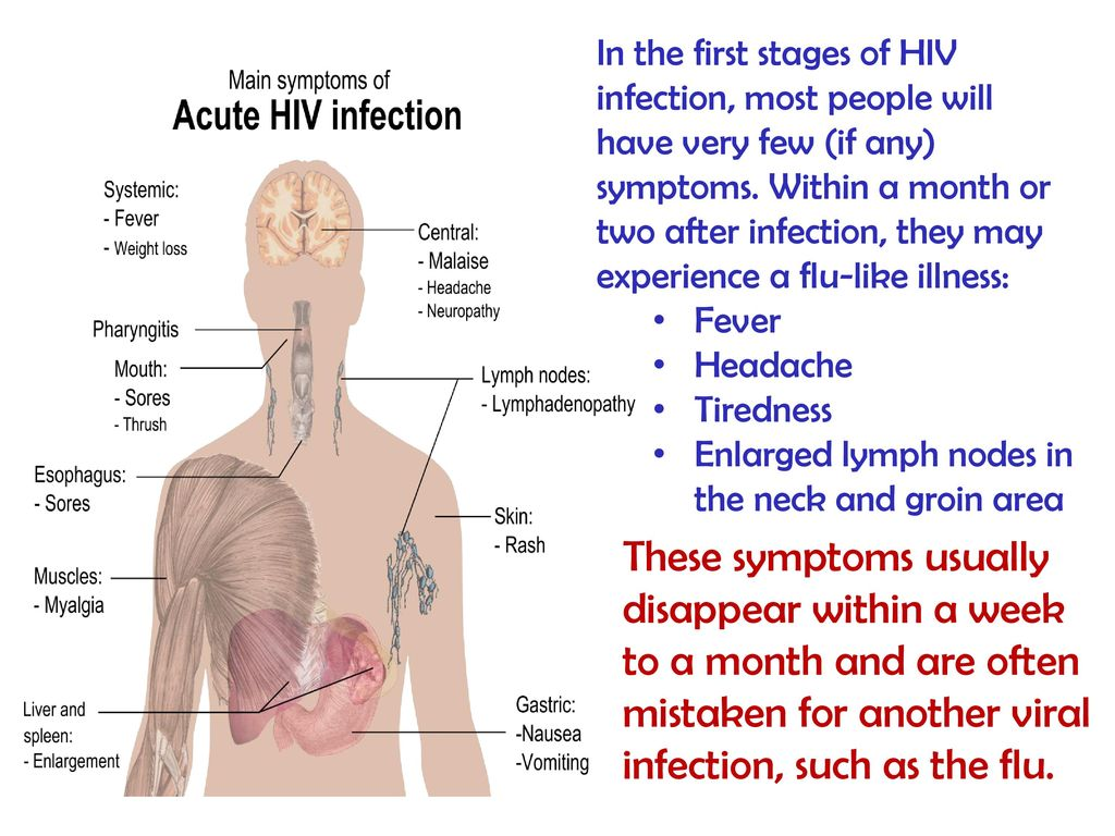 Understanding HIV & AIDS  - ppt download