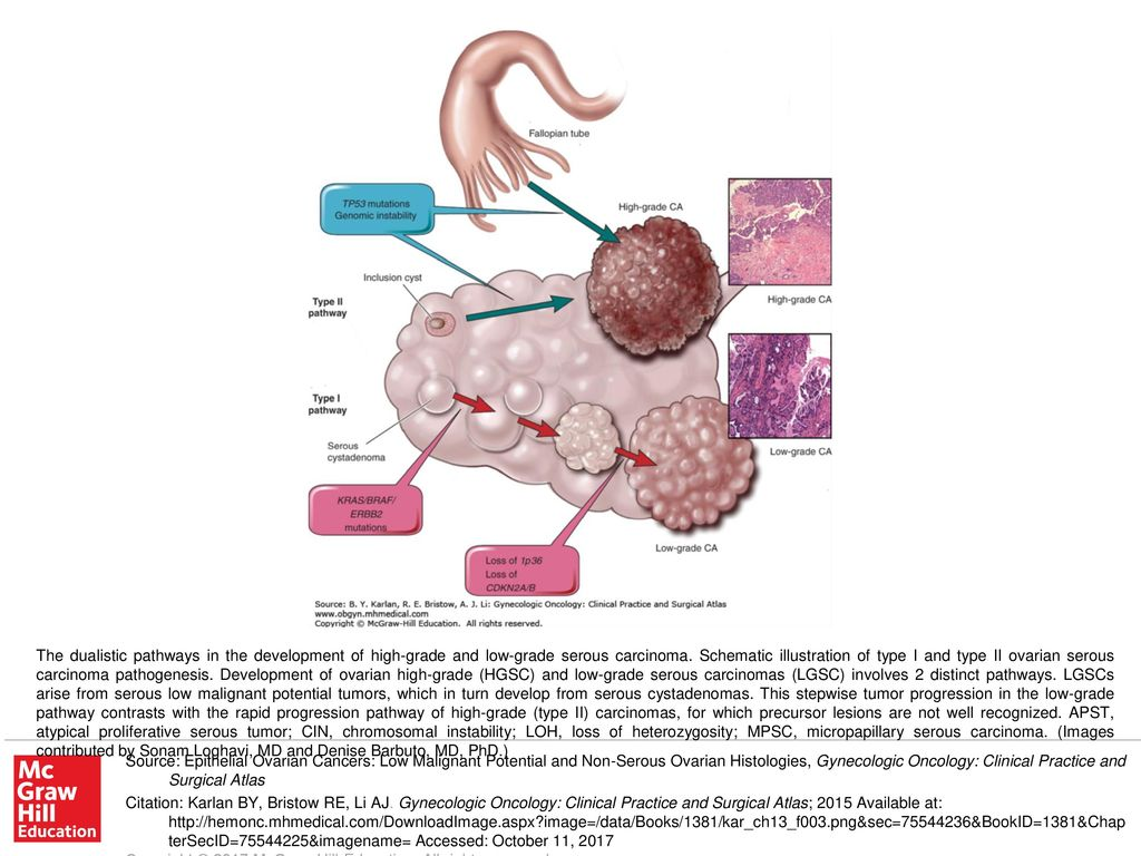 The Dualistic Pathways In The Development Of High Grade And Low Grade Serous Carcinoma Schematic Illustration Of Type I And Type Ii Ovarian Serous Carcinoma Ppt Download