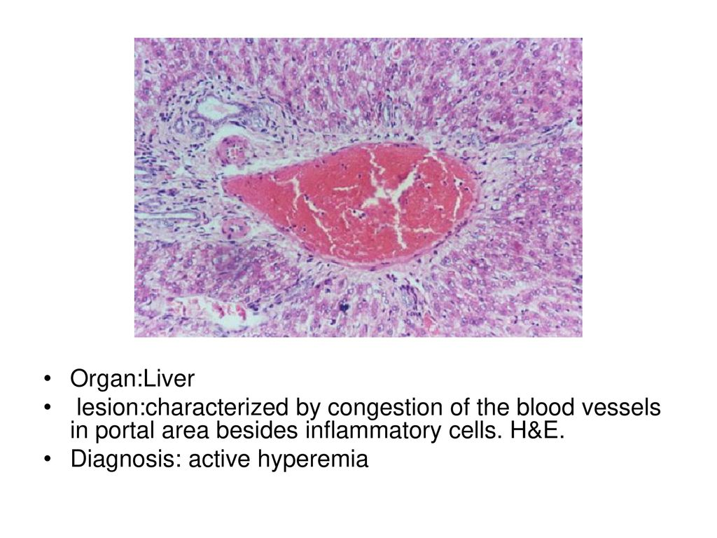 Organlung Lesion The Color Of Affected Part Is Dark Red Or Organ 2 Organliver