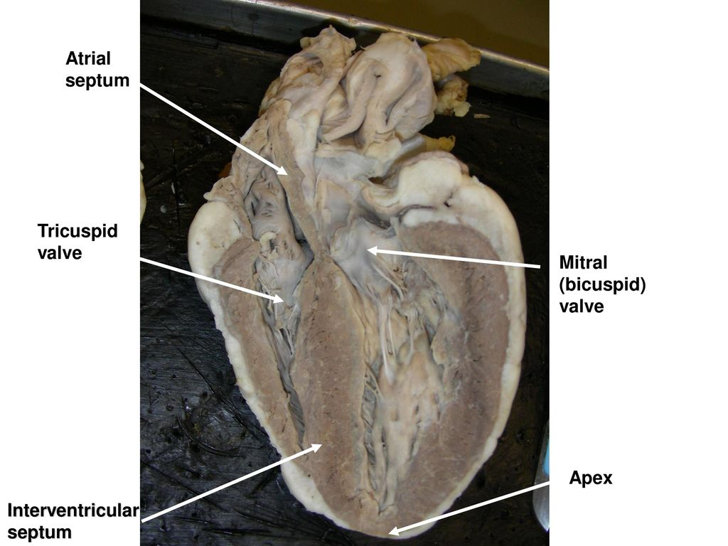 Images Of Interventricular Septum Function Rock Cafe
