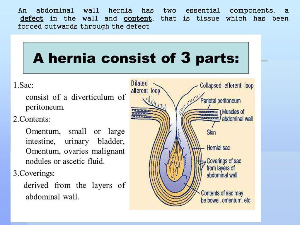 Abdominal Wall Layers Hernia - Best Wall 2018