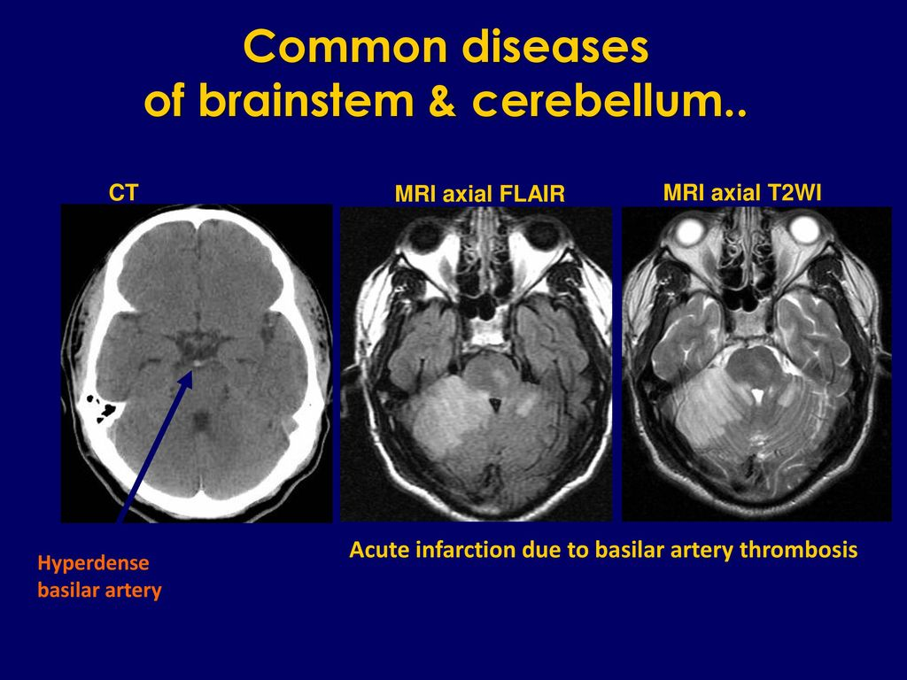 Brainstem & Cerebellum - ppt download