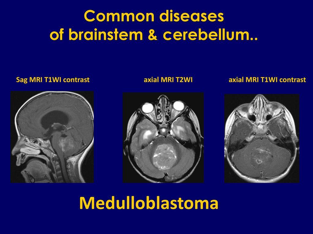 Brainstem & Cerebellum - ppt download
