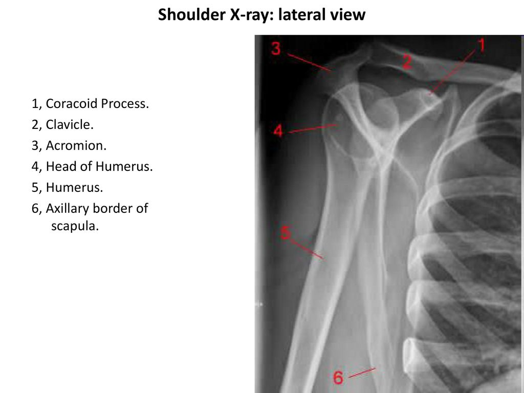 Shoulder Osteology X-ray Muscles CT/MRI. - ppt download