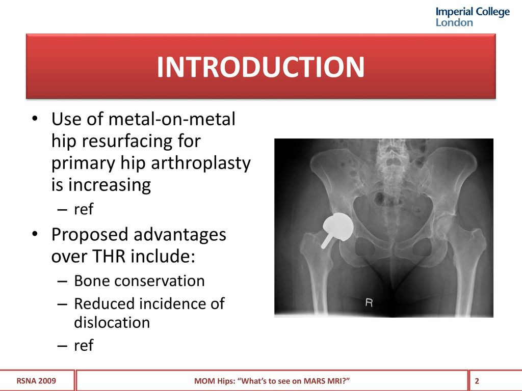 """Metal-on-metal hips. """"What\'s to see on MRI?"""" - ppt download"""