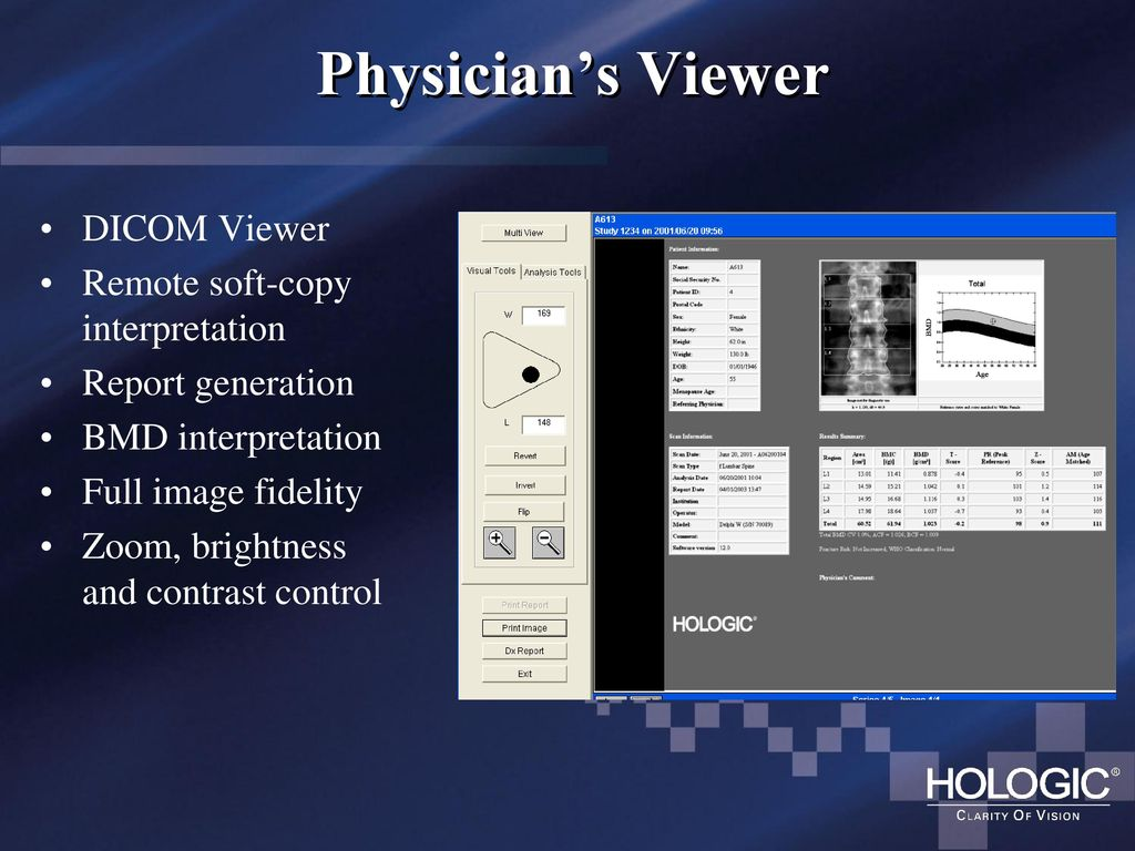 Osteoporosis Assessment Using DXA - ppt download