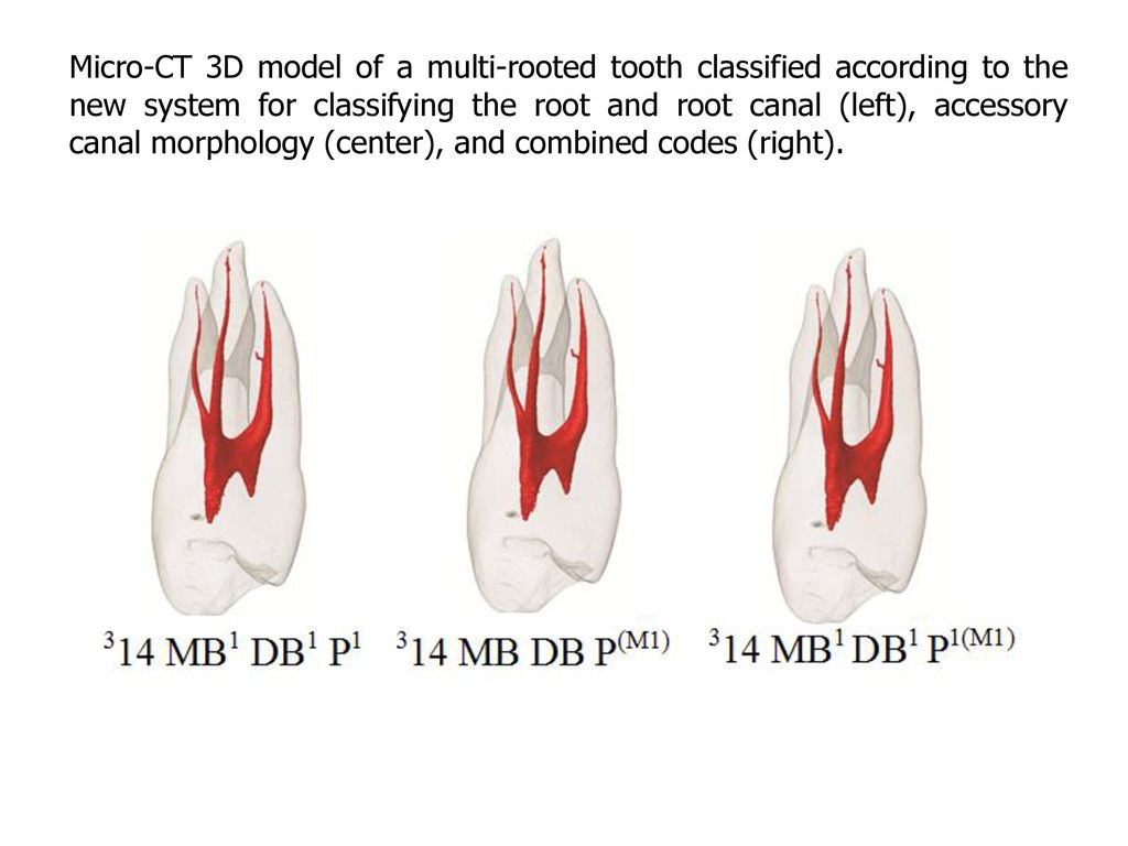 BRIEF NOTE New System For Classifying Root and Root Canal Morphology ...