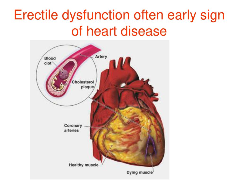 Erectile Dysfunction and Heart Disease