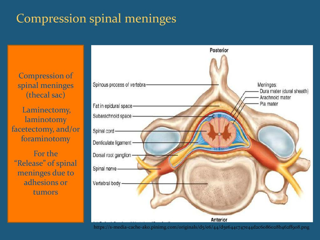 Spinal Procedure Coding in ICD ppt download