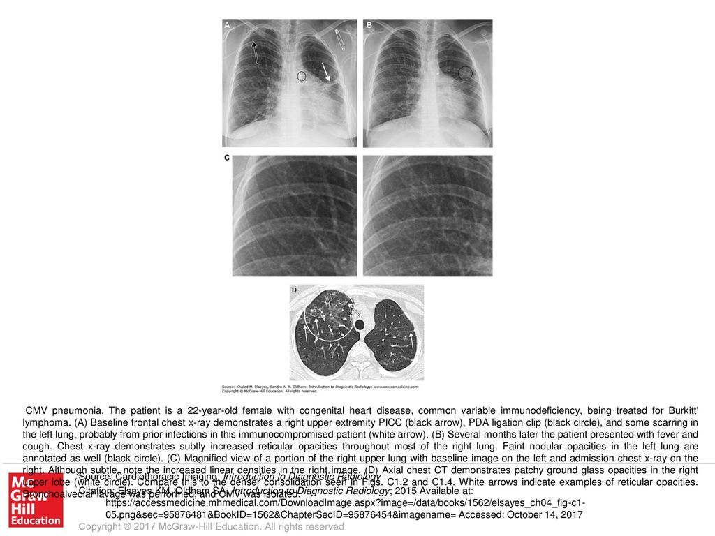 CMV pneumonia  The patient is a 22-year-old female with