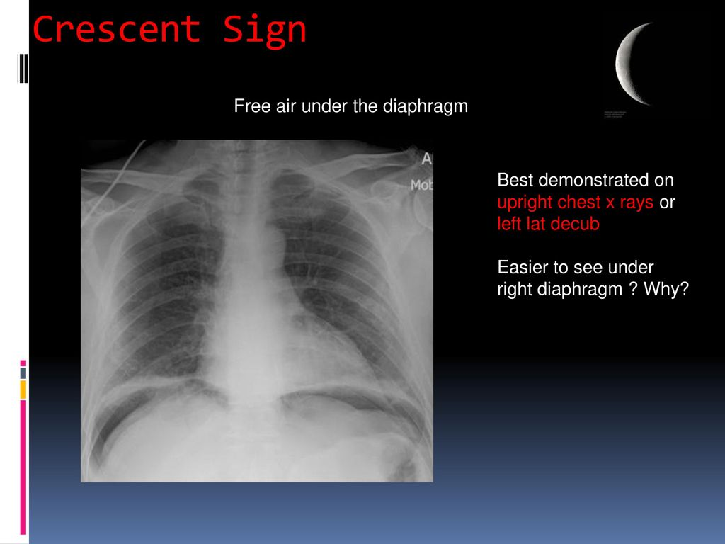 Radiology Of The Abdomen Ppt Download