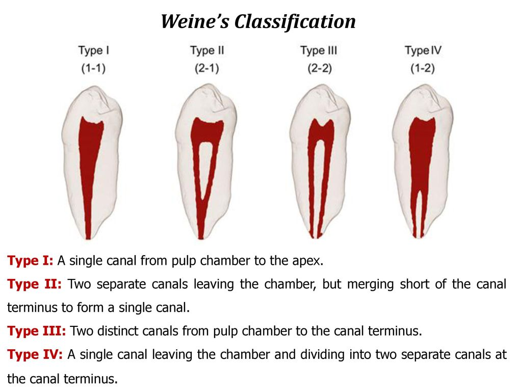 New System For Classifying Root and Root Canal Morphology - ppt download