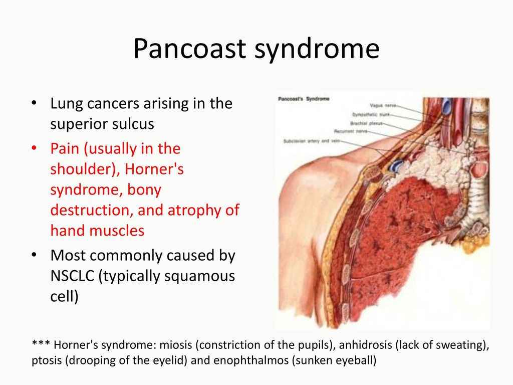 Thoracic Cancer Case Presentation Differential Diagnosis Ppt
