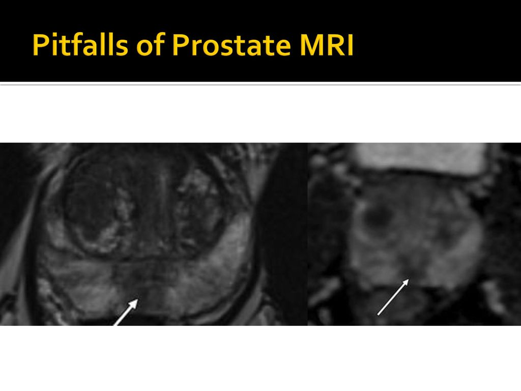 Developing a Multidisciplinary Prostate MRI Program: - ppt download