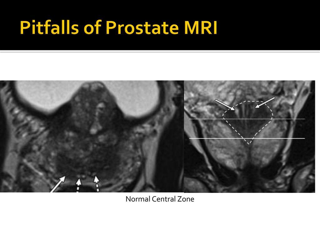 pitfalls prostate mri radiographics