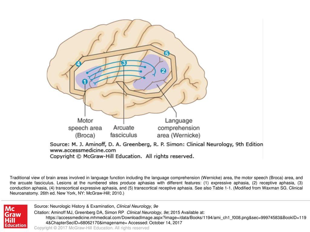 language speech comprehension area