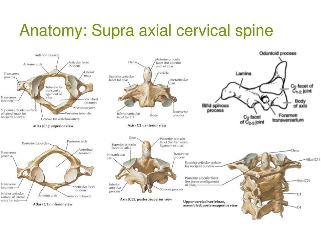 Cervical Spine Trauma Odontoid fractures Anatomic pathology - ppt ...