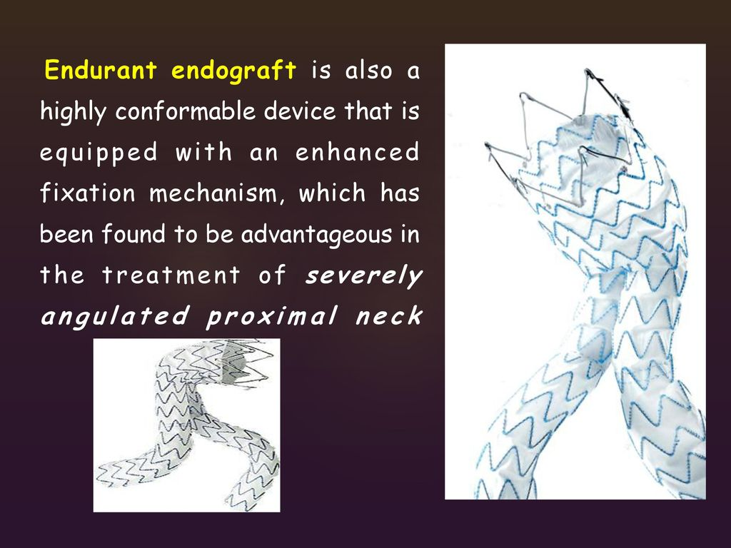 Endurant endograft is also a highly conformable device that is equipped with an enhanced fixation mechanism, which has been found to be advantageous in the treatment of severely angulated proximal neck