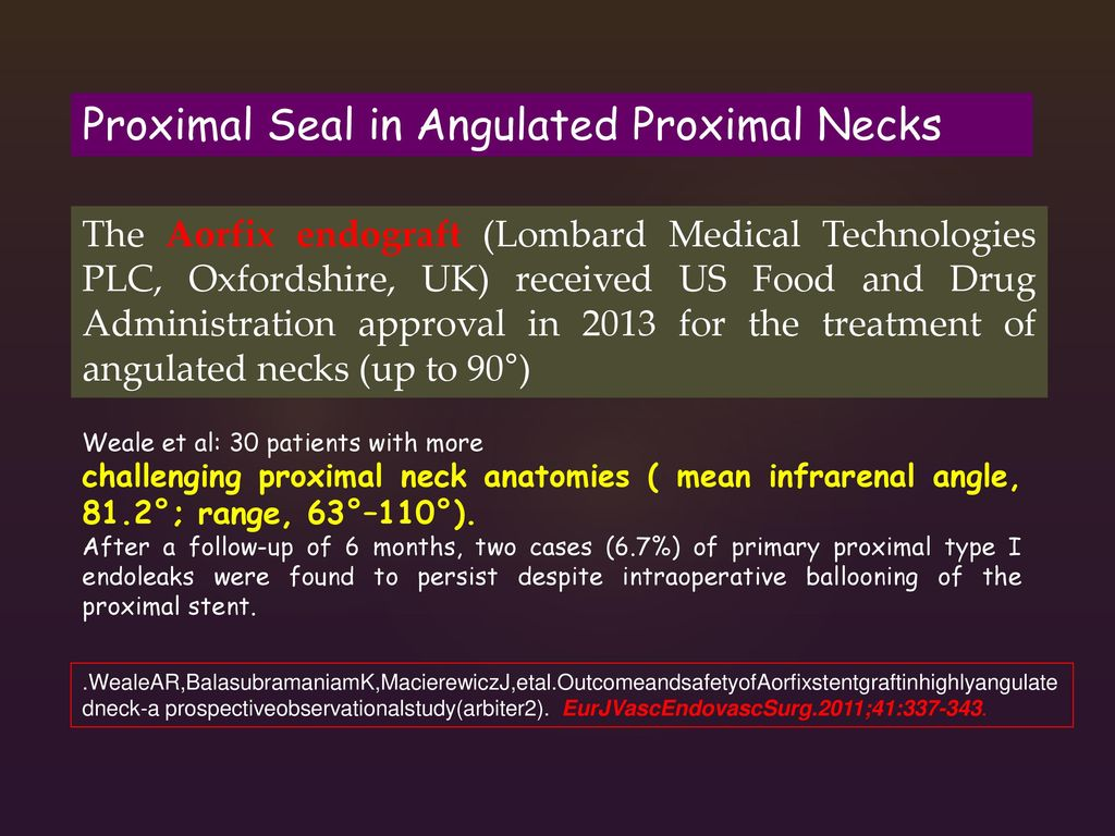 Proximal Seal in Angulated Proximal Necks