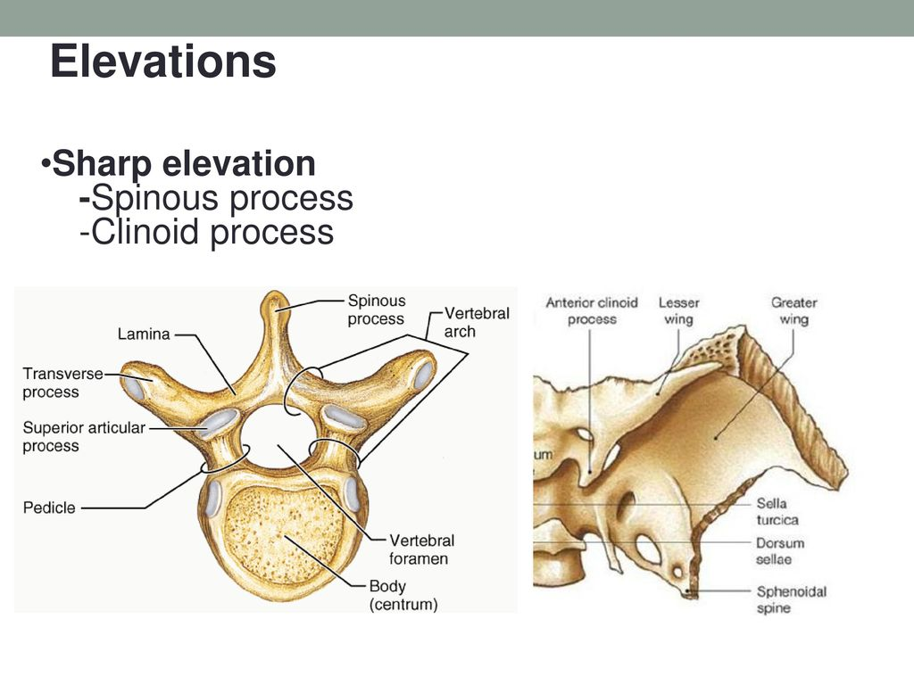 Orthopedic Devices Dr. Mehdi Rezaei - ppt download