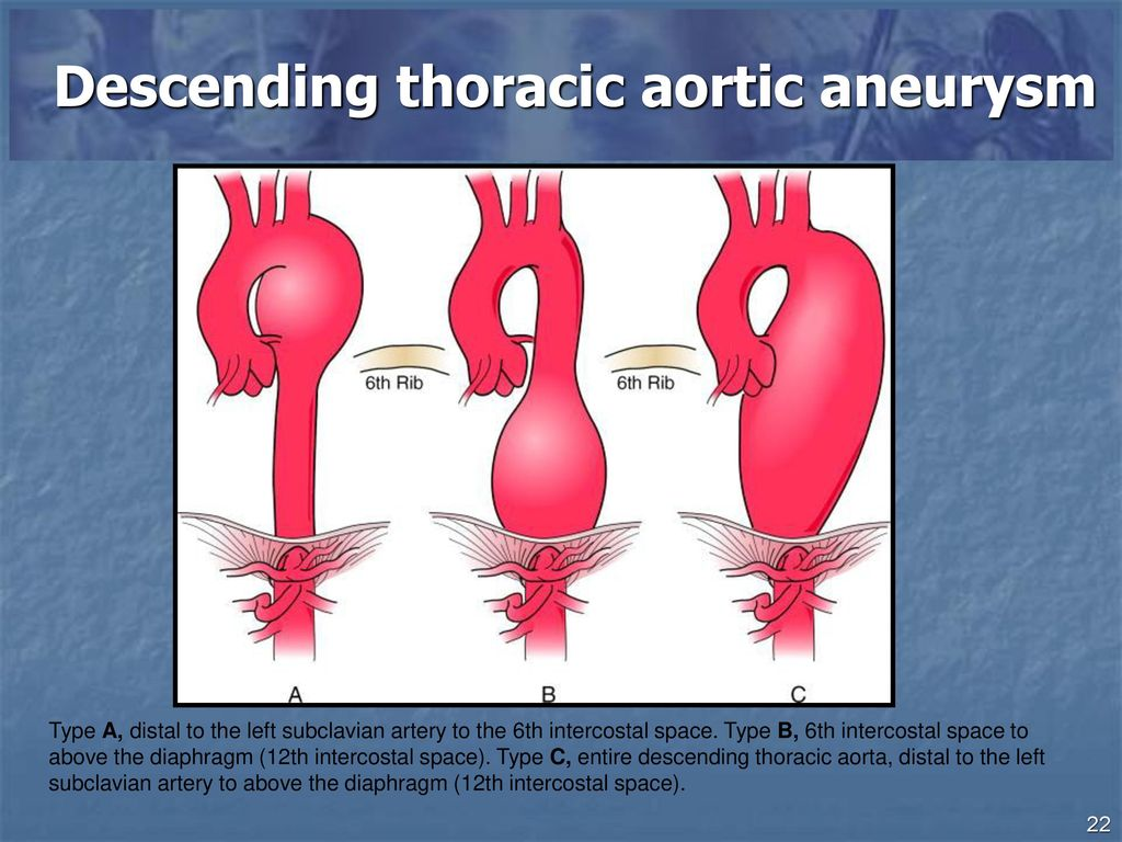 Thoracic Aortic Aneurysms Aortic Dissection Ppt Download