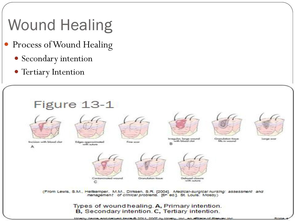 Chapter 13 Surgical Wound Care - ppt download