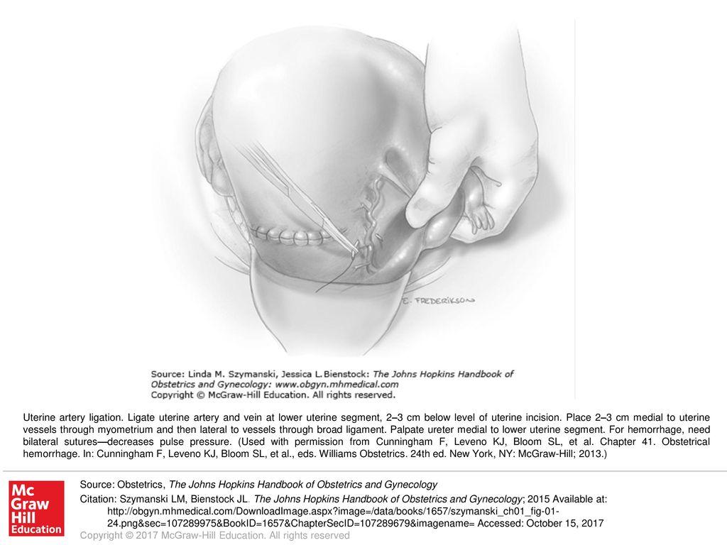 uterine artery ligation