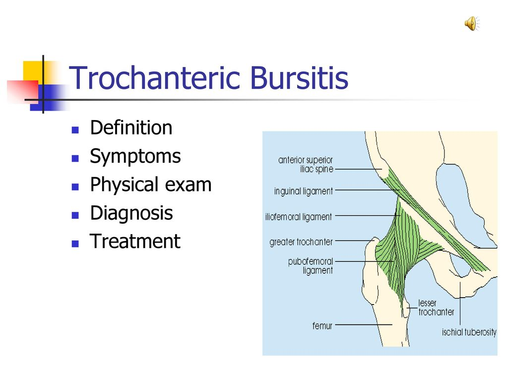 Trochanteric Bursitis - ppt download