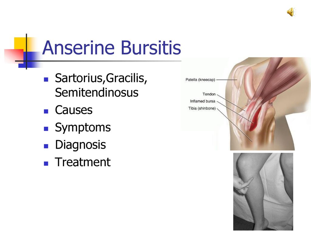 Trochanteric Bursitis - ppt download