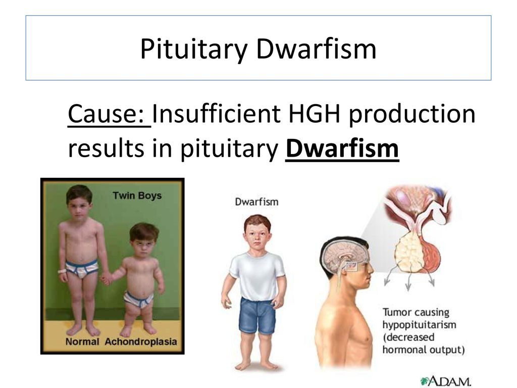 a study of pituitary dwarfism Clinical examination of pituitary dwarfism (growth hormone deficiency, panhypopituitarism) a study conducted in the us of 80,000 utah school children, indicated that 555 children were below the third height percentile and had growth rates less than 5 cm/year of these children, 33 had ghd, an.