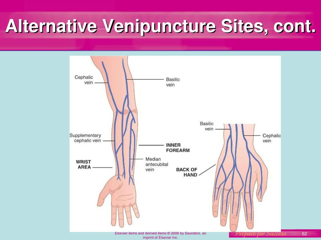 Snap Awesome Antecubital Vein Composition Human Anatomy Images