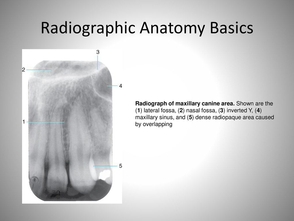 Fantastic Canine Radiographic Anatomy Ensign Anatomy And