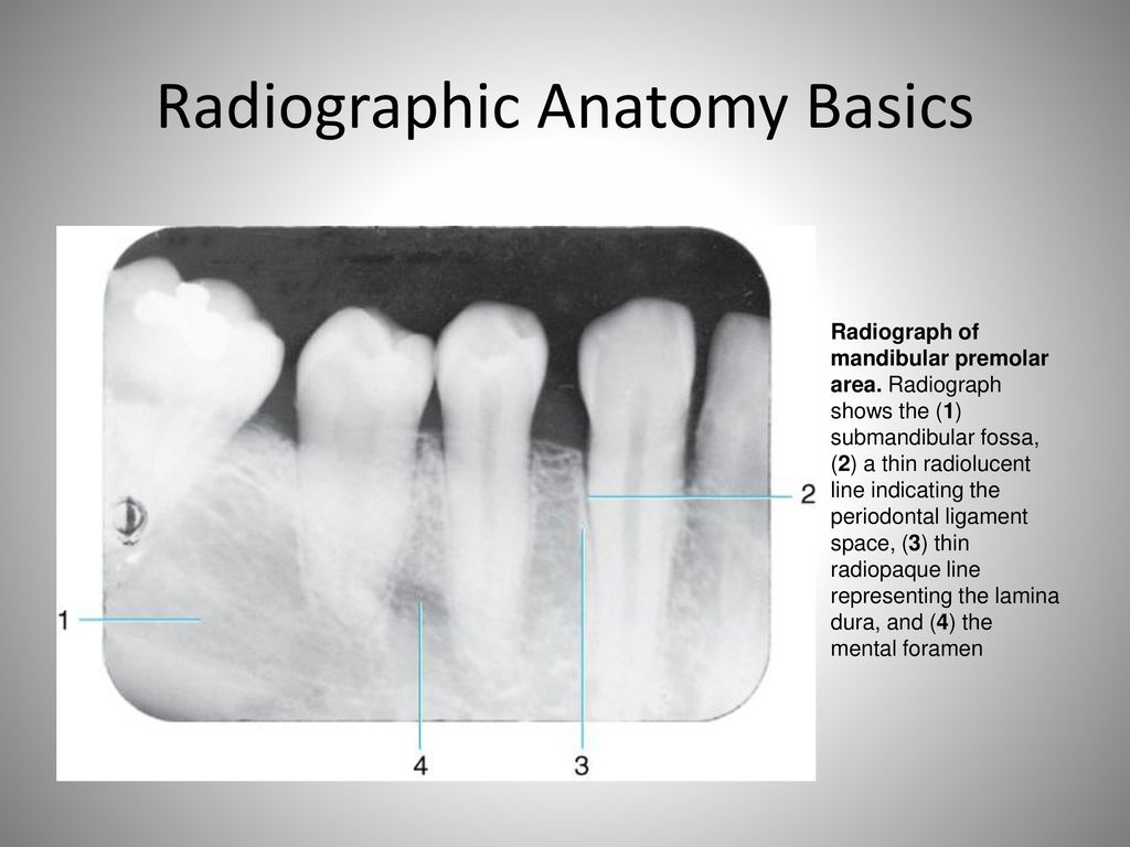 Awesome Intraoral Radiographic Anatomy Vignette - Physiology Of ...