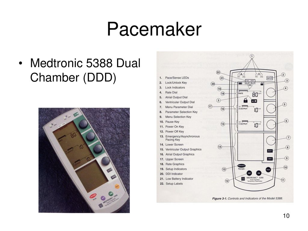 Temporary Pacemakers  - ppt download