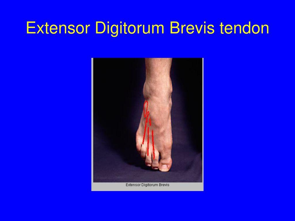 Perfecto Extensor Digitorum Brevis Imagen - Imágenes de Anatomía ...