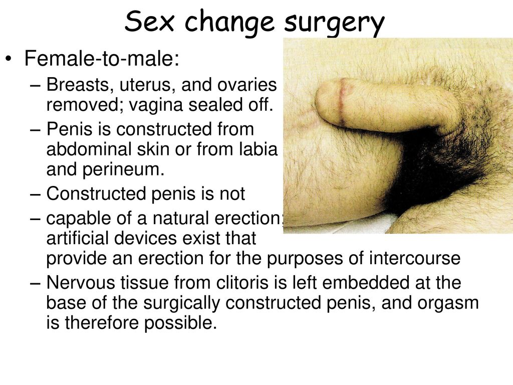 penis After vagina change sex to