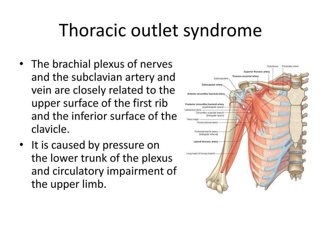 Thoracic outlet syndrome Comprehensive overview covers symptoms treatment of this nerve and circulatory condition