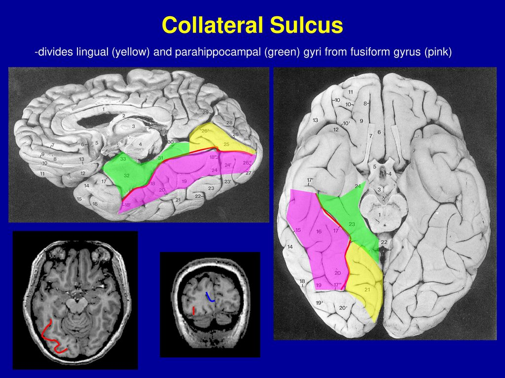 BRIEF INTRO TO CORTICAL NEUROANATOMY - ppt download