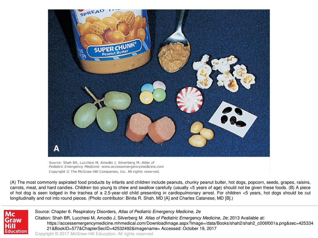 A The Most Commonly Aspirated Food Products By Infants And Children
