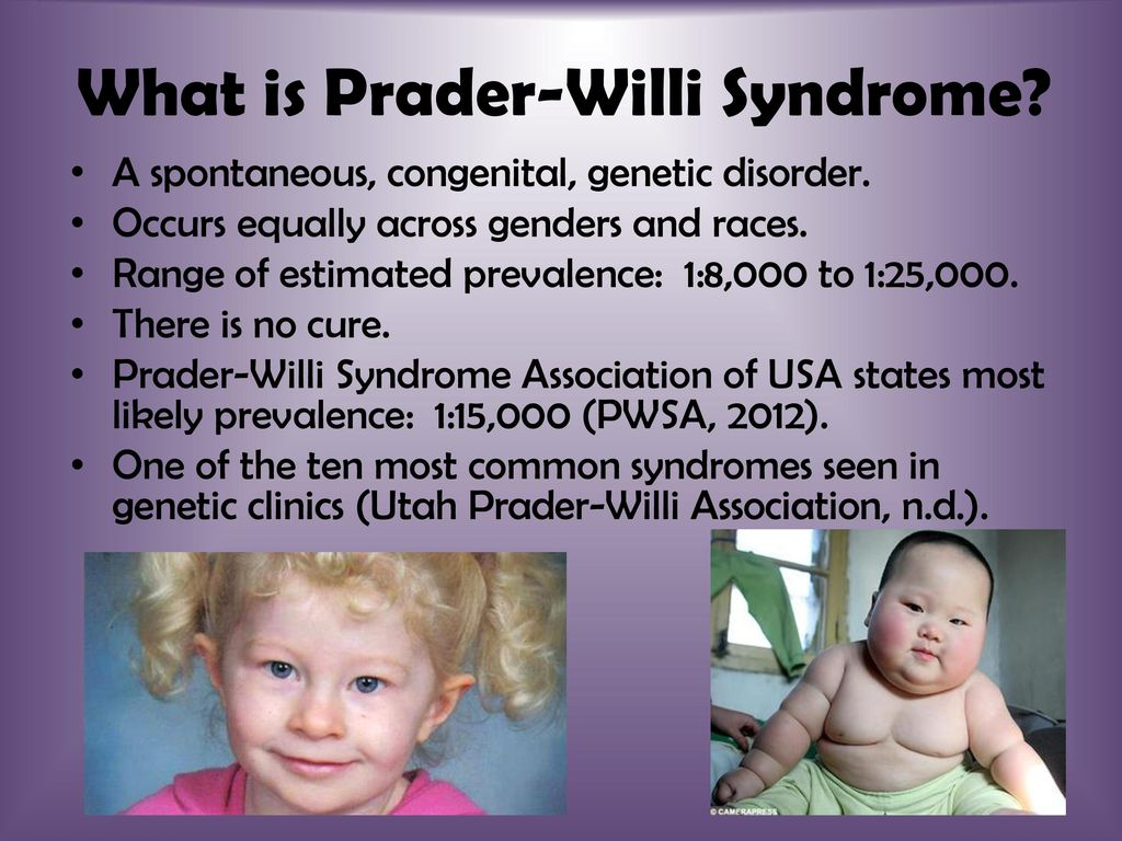 the disability with a dual nature prader willi syndrome in ei and