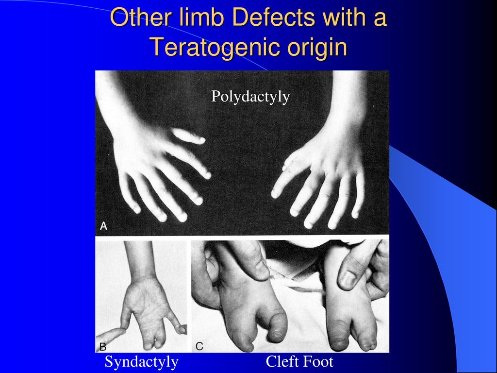 Other limb Defects with a Teratogenic origin