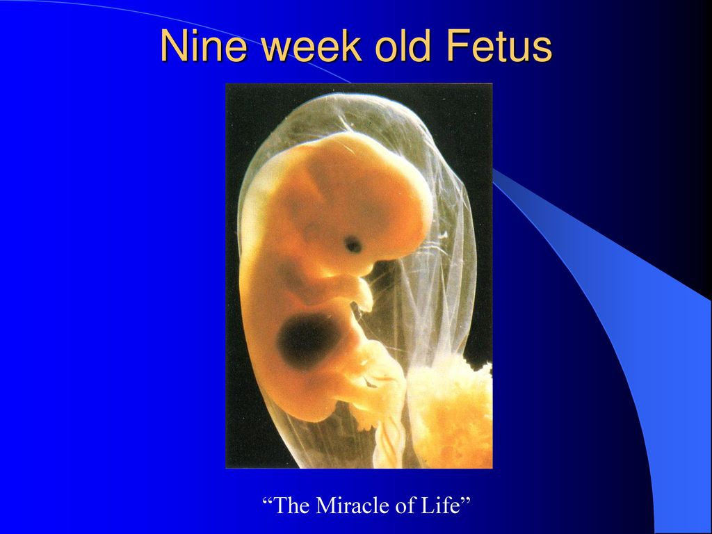 Nine week old Fetus The Miracle of Life