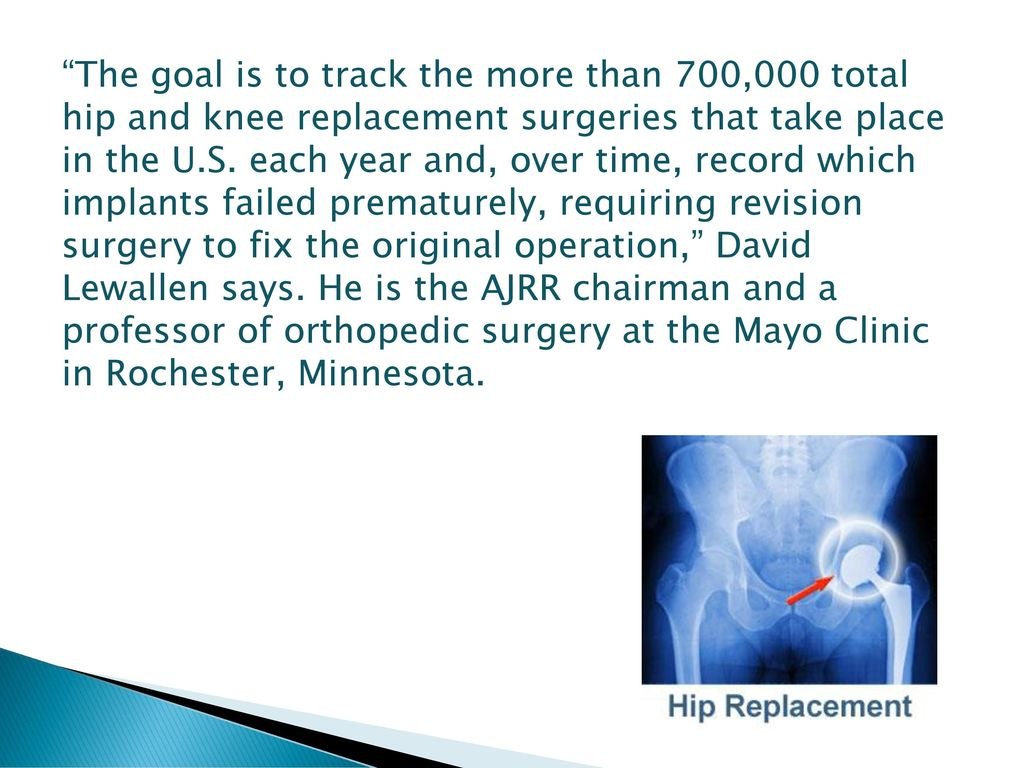 Joint Implant Surgery Created by Doctors and Engineers - ppt download