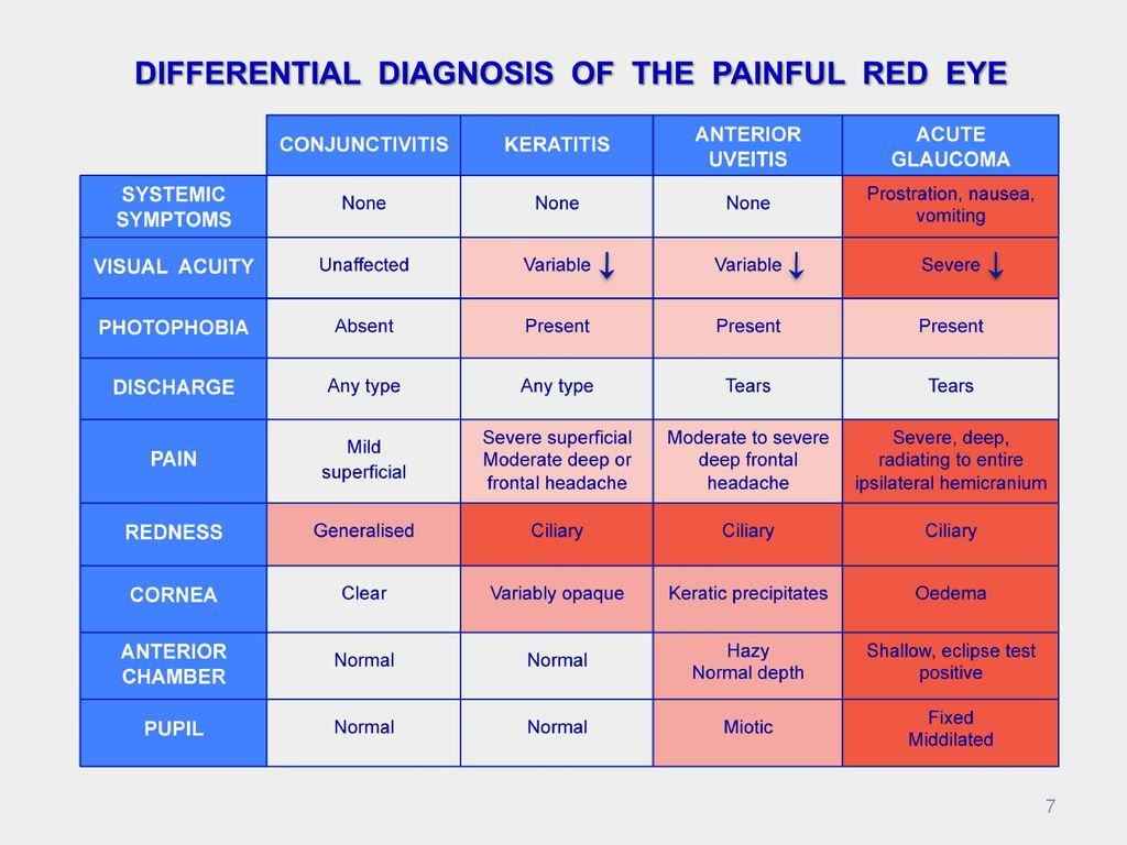 7 Diffeial Diagnosis Of The Painful Red Eye