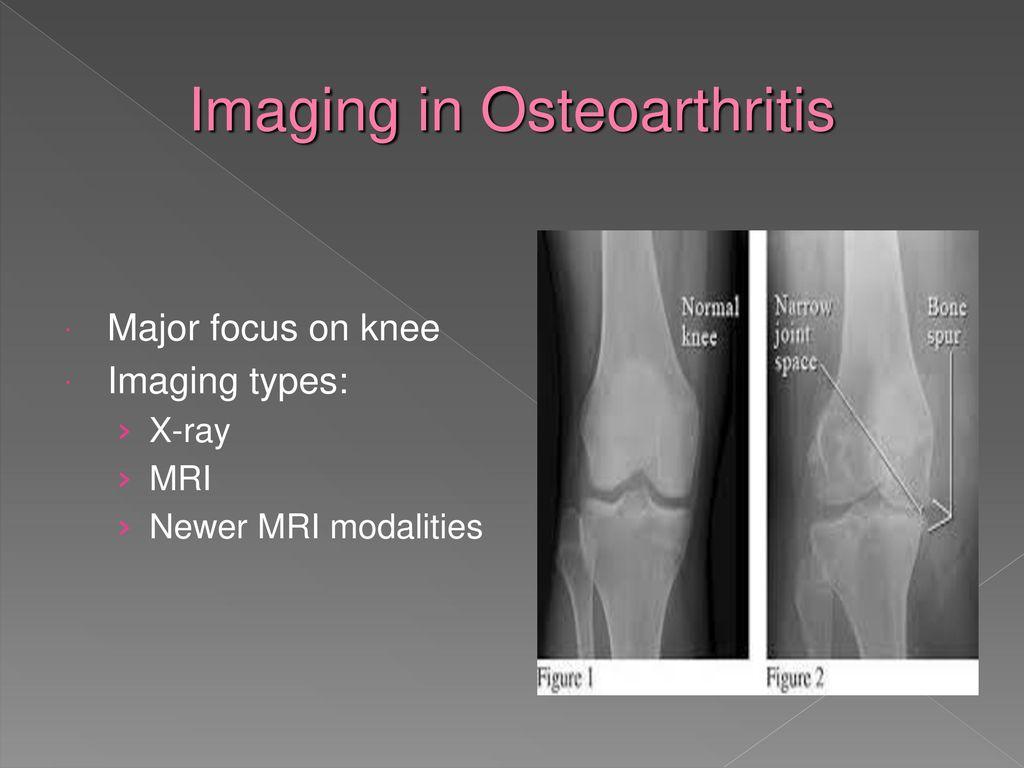 ízületi gyulladás térdízületi kezelése fájdalom kezelése térd artrózissal