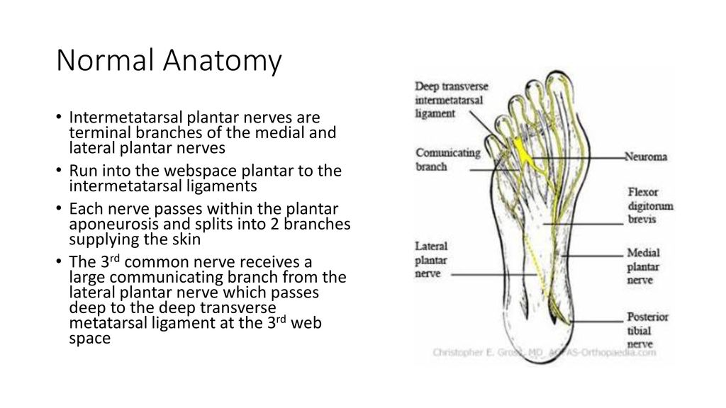 Mortons Neuroma Ppt Download