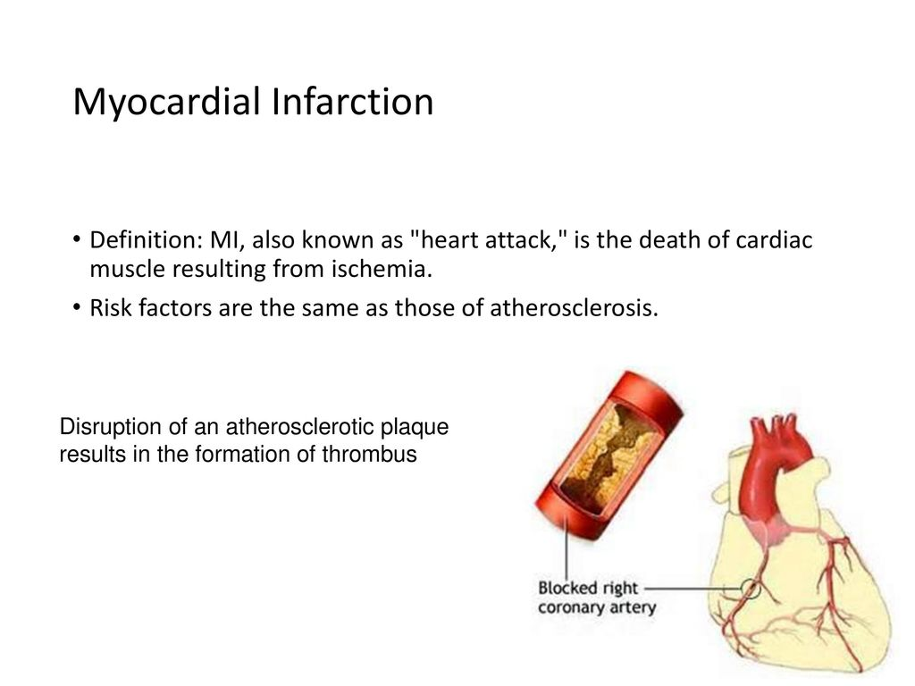 pathology of cardiovascular system 6 lectures - ppt download